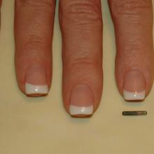 This is a microchip.